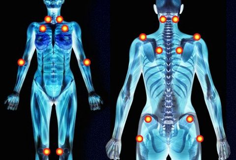 Trigger Point - Osteopatia