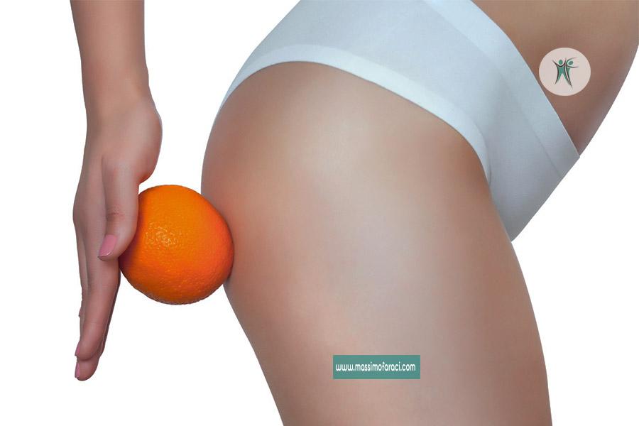 Cellulite o ritenzione idrica